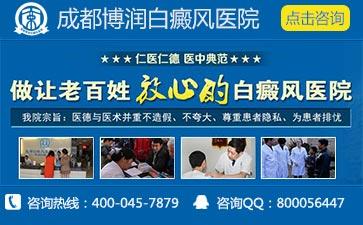 成都最有名的白癜风医院是哪家