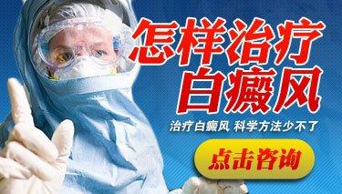 四川省成都医院可以治疗白斑吗?治疗白癜风与哪些因素有关?