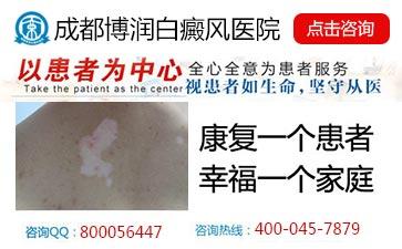 中国治疗白癜风最好的医院在那里