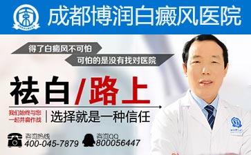 治疗白癜风成都最好的医院