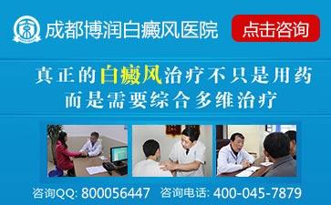 成都最有名的白癜风医院