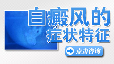 <a href=http://www.bdf39.com/ target=_blank class=infotextkey>成都白癜风专科医院</a>医生讲解:手部白斑是白癜风吗?