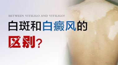 <a href=http://www.bdf39.com/ target=_blank class=infotextkey>成都白癜风医院</a>?小孩头部的白癜风该怎么治疗?