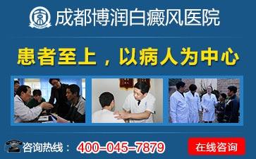 成都治疗白癜风最好的专科医院